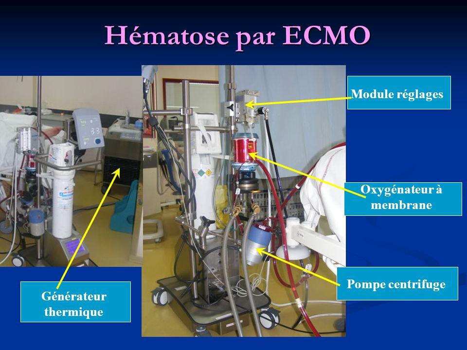 Hématose par ECMO Pompe centrifuge Oxygénateur à membrane Module réglages Générateur thermique