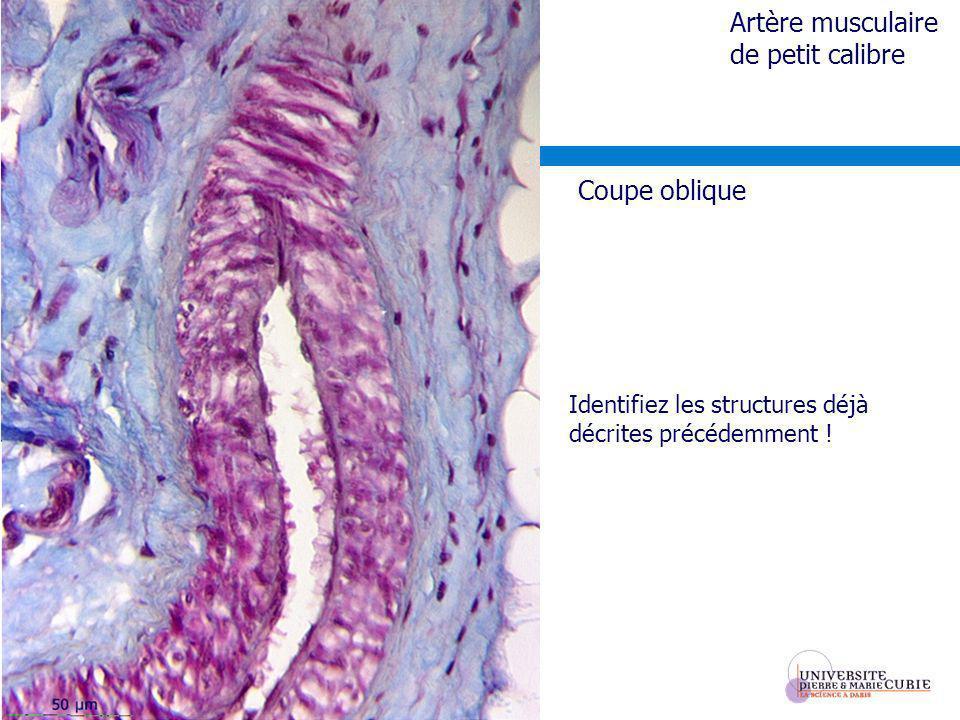 Identifiez les structures déjà décrites précédemment ! Artère musculaire de petit calibre Coupe oblique