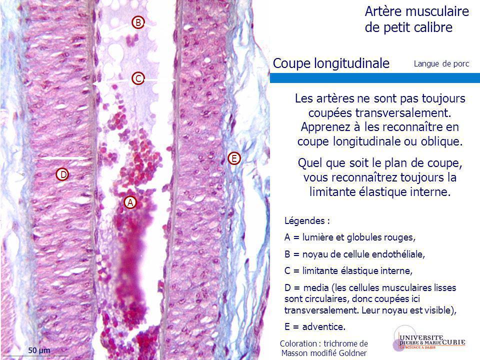 Coloration : trichrome de Masson modifié Goldner Les artères ne sont pas toujours coupées transversalement. Apprenez à les reconnaître en coupe longit