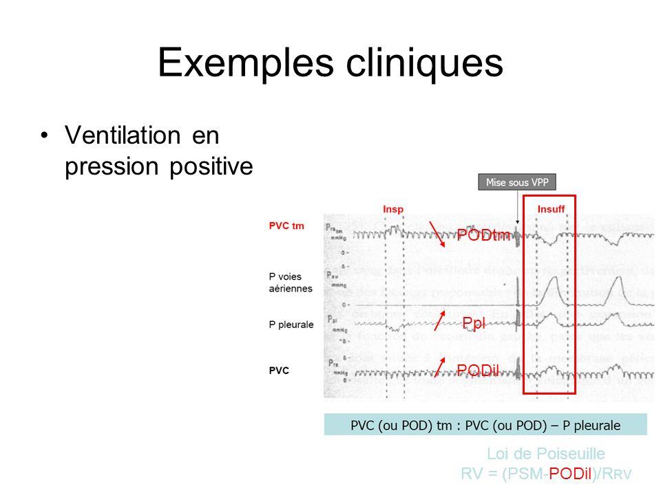 Exemples cliniques Ventilation en pression positive Ppl PODil PODtm Loi de Poiseuille RV = (PSM-PODil)/R RV