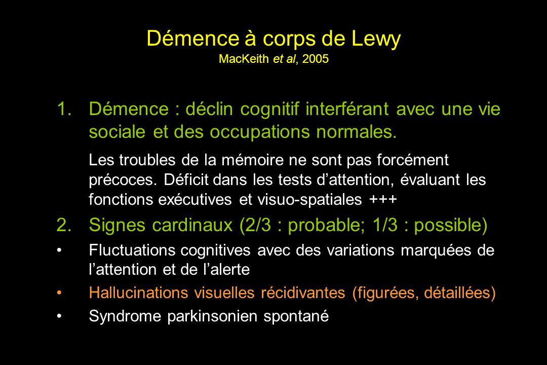Démence à corps de Lewy MacKeith et al, 2005 1.Démence : déclin cognitif interférant avec une vie sociale et des occupations normales.