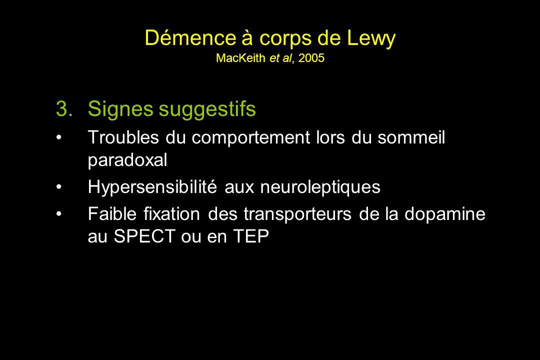 Démence à corps de Lewy MacKeith et al, 2005 3.Signes suggestifs Troubles du comportement lors du sommeil paradoxal Hypersensibilité aux neuroleptiques Faible fixation des transporteurs de la dopamine au SPECT ou en TEP