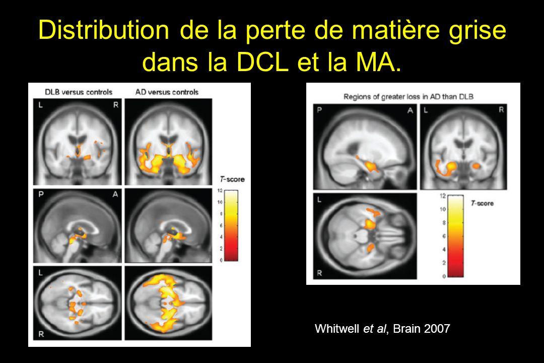 Distribution de la perte de matière grise dans la DCL et la MA. Whitwell et al, Brain 2007