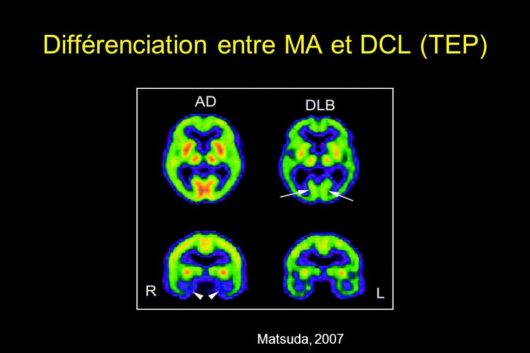 Différenciation entre MA et DCL (TEP) Matsuda, 2007