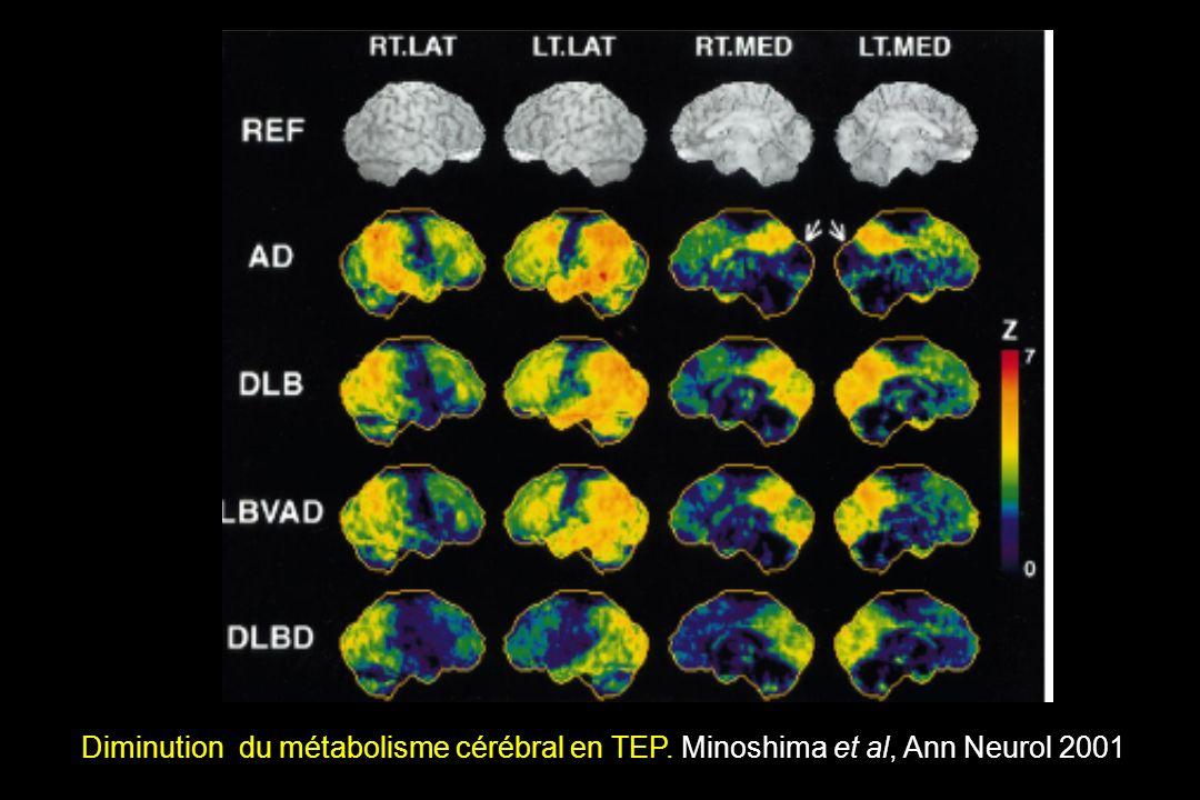 Diminution du métabolisme cérébral en TEP. Minoshima et al, Ann Neurol 2001