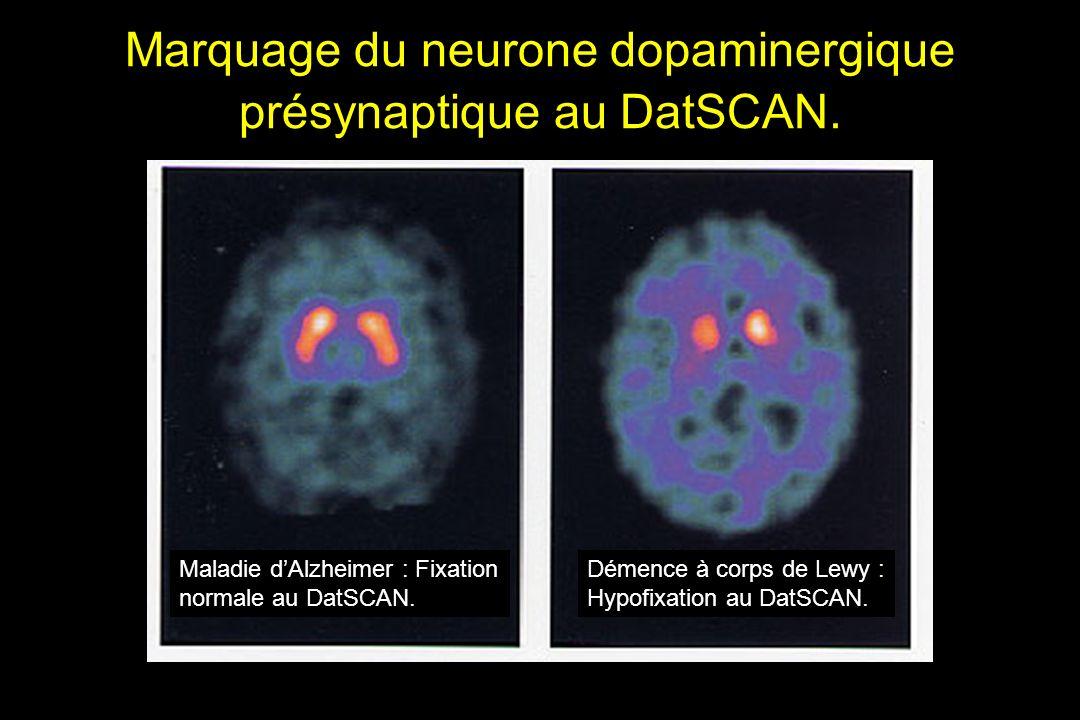 Marquage du neurone dopaminergique présynaptique au DatSCAN.