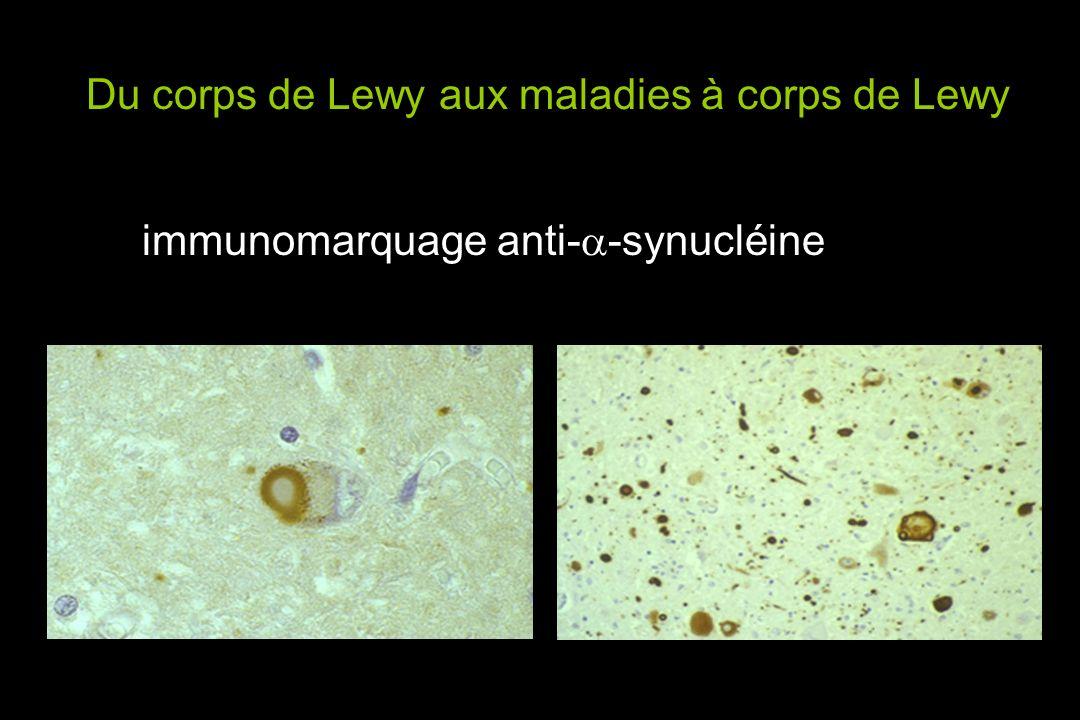 Du corps de Lewy aux maladies à corps de Lewy immunomarquage anti- -synucléine
