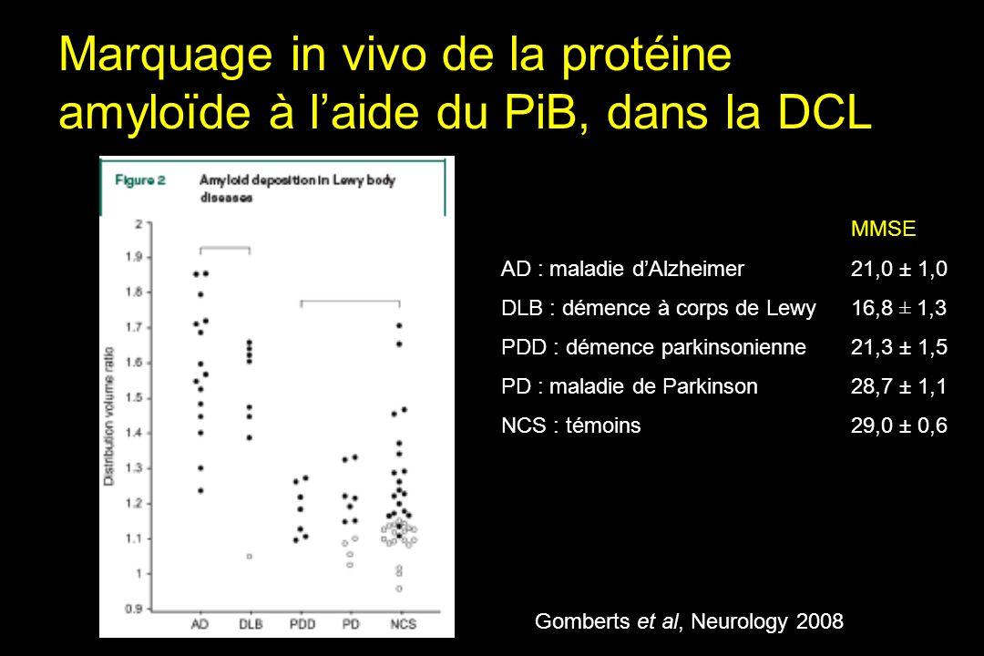 Marquage in vivo de la protéine amyloïde à laide du PiB, dans la DCL MMSE AD : maladie dAlzheimer21,0 ± 1,0 DLB : démence à corps de Lewy16,8 ± 1,3 PDD : démence parkinsonienne21,3 ± 1,5 PD : maladie de Parkinson28,7 ± 1,1 NCS : témoins29,0 ± 0,6 Gomberts et al, Neurology 2008