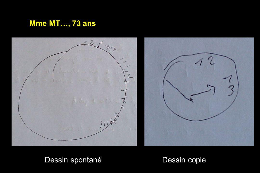 Dessin spontanéDessin copié Mme MT…, 73 ans