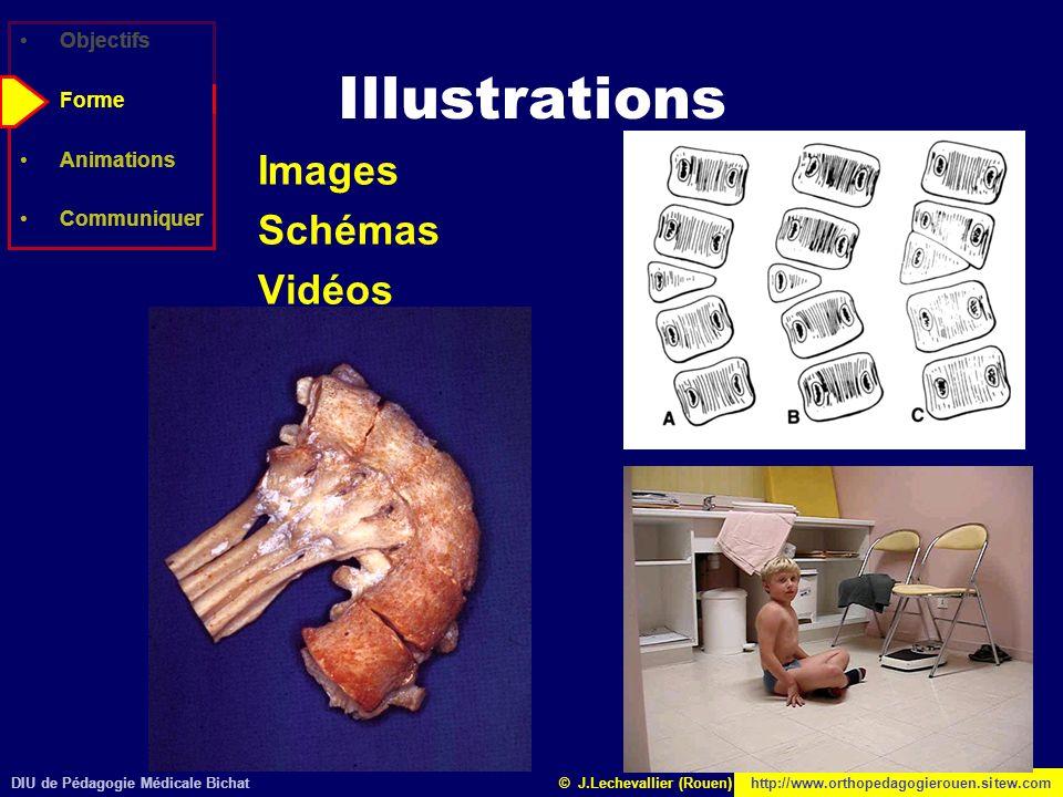 DIU de Pédagogie Médicale Bichathttp://www.orthopedagogierouen.sitew.com© J.Lechevallier (Rouen) Objectifs Forme Animations Communiquer Illustrations
