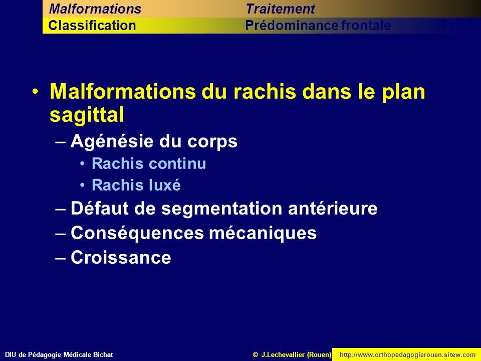 DIU de Pédagogie Médicale Bichathttp://www.orthopedagogierouen.sitew.com© J.Lechevallier (Rouen) Cinquième titreSixième titrePrédominance sagittaleCla