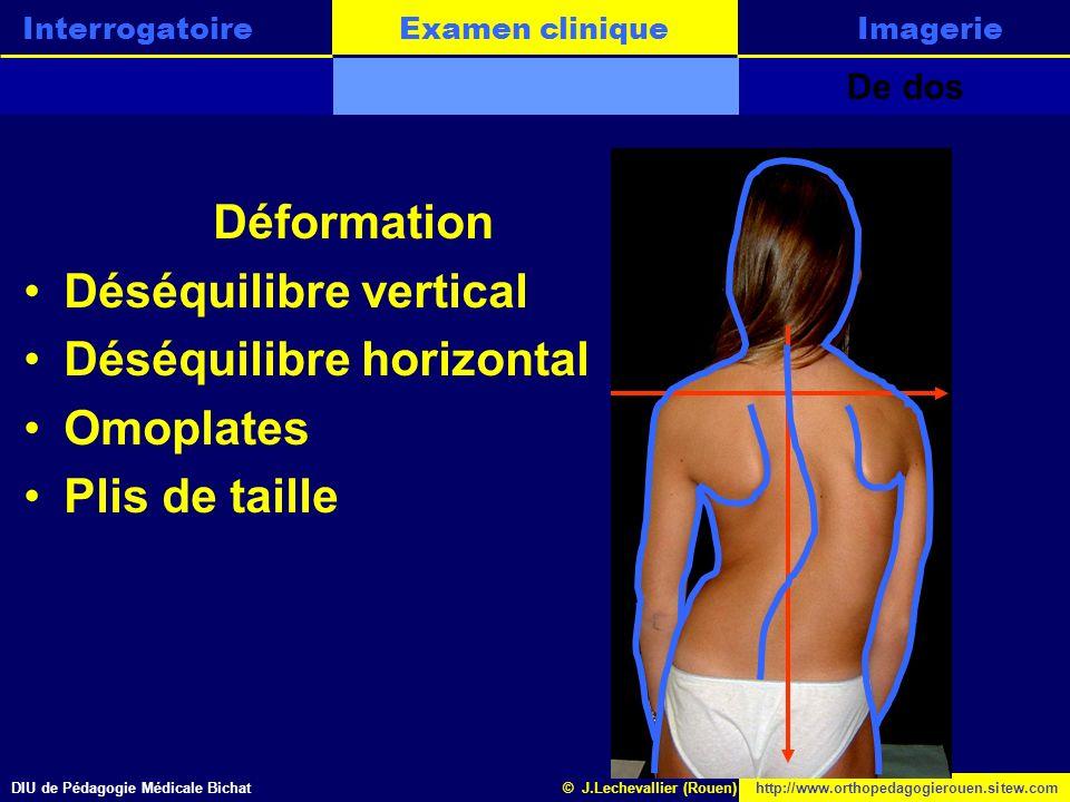 DIU de Pédagogie Médicale Bichathttp://www.orthopedagogierouen.sitew.com© J.Lechevallier (Rouen) Examen cliniqueInterrogatoireLannonceImagerie De prof