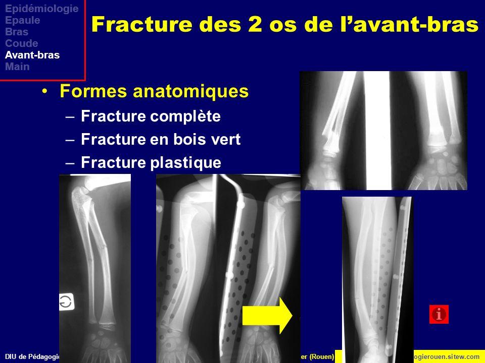 DIU de Pédagogie Médicale Bichathttp://www.orthopedagogierouen.sitew.com© J.Lechevallier (Rouen) Epidémiologie Epaule Bras Coude Avant-bras Main Fract