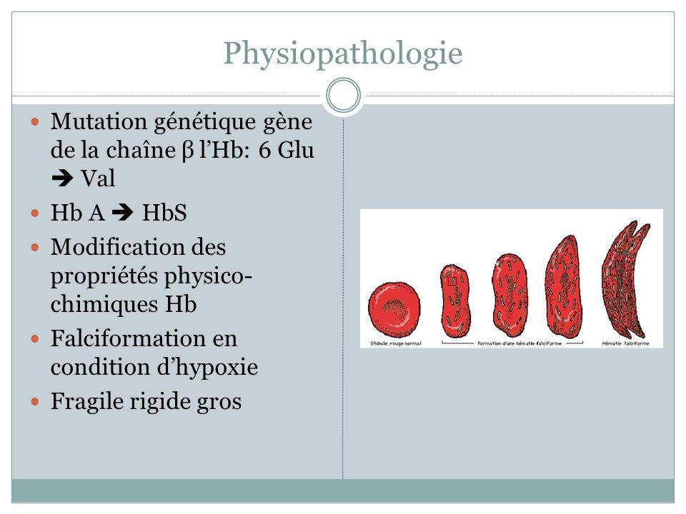 Physiopathologie Mutation génétique gène de la chaîne β lHb: 6 Glu Val Hb A HbS Modification des propriétés physico- chimiques Hb Falciformation en condition dhypoxie Fragile rigide gros