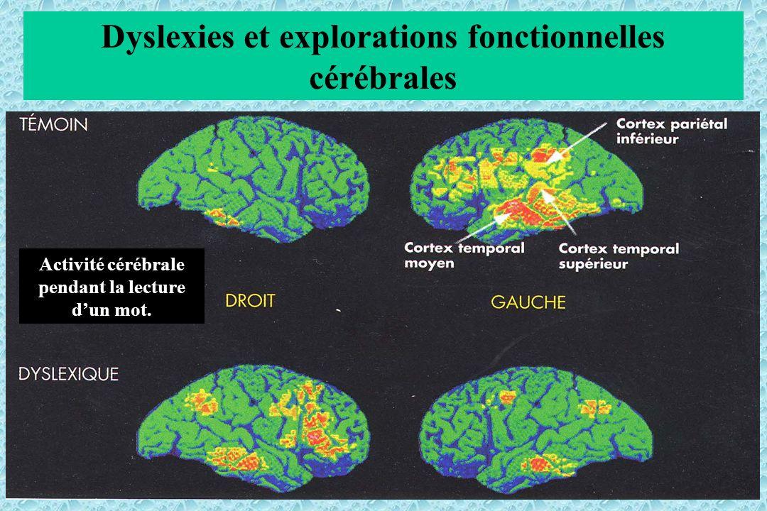 Dyslexies et explorations fonctionnelles cérébrales Activité cérébrale pendant la lecture dun mot.