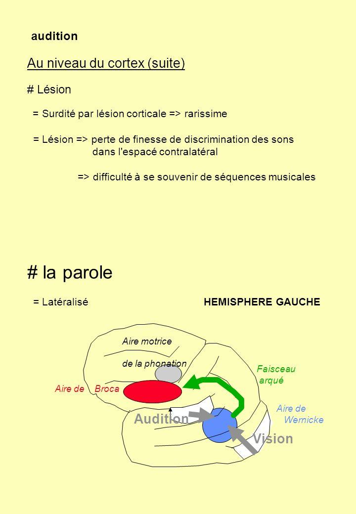 audition Au niveau du cortex (suite) # Lésion = Surdité par lésion corticale => rarissime = Lésion => perte de finesse de discrimination des sons dans