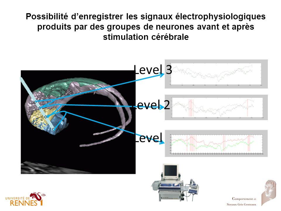 Possibilité denregistrer les signaux électrophysiologiques produits par des groupes de neurones avant et après stimulation cérébrale Level 1 Level 2 L