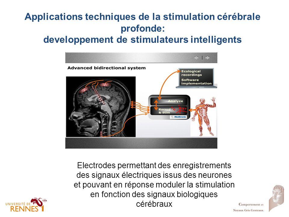 Applications techniques de la stimulation cérébrale profonde: developpement de stimulateurs intelligents Electrodes permettant des enregistrements des