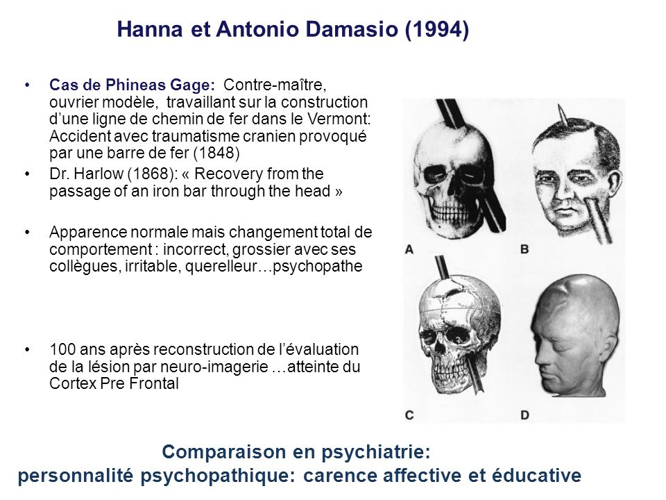 Hanna et Antonio Damasio (1994) Cas de Phineas Gage: Contre-maître, ouvrier modèle, travaillant sur la construction dune ligne de chemin de fer dans l