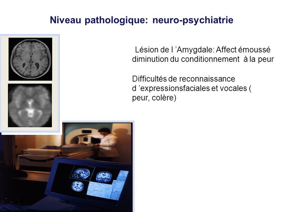 Niveau pathologique: neuro-psychiatrie Lésion de l Amygdale: Affect émoussé diminution du conditionnement à la peur Difficultés de reconnaissance d ex