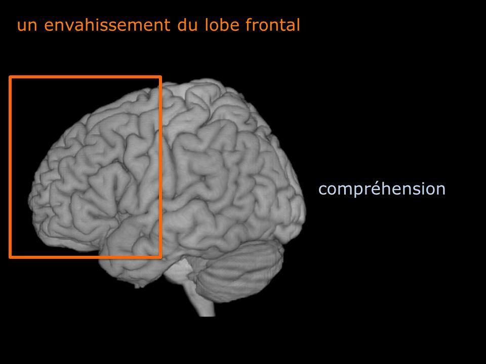 un envahissement du lobe frontal compréhension