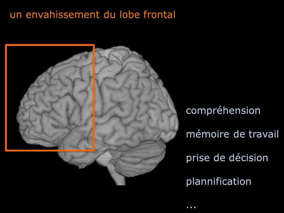 un envahissement du lobe frontal compréhension mémoire de travail prise de décision plannification...