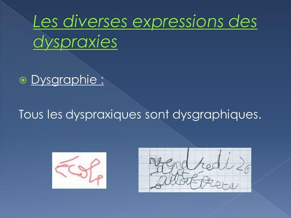 Dysgraphie : Tous les dyspraxiques sont dysgraphiques.