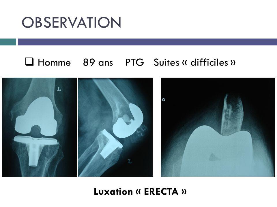 OBSERVATION Homme 89 ans PTG Suites « difficiles » Luxation « ERECTA »