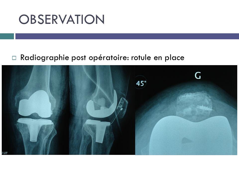 OBSERVATION Radiographie post opératoire: rotule en place