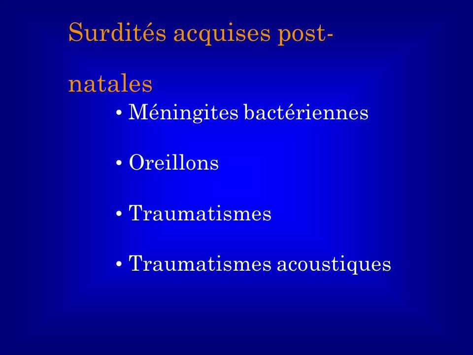 Méningites bactériennes Oreillons Traumatismes Traumatismes acoustiques Surdités acquises post- natales