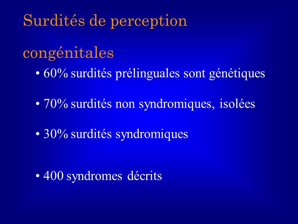 60% surdités prélinguales sont génétiques 70% surdités non syndromiques, isolées 30% surdités syndromiques 400 syndromes décrits Surdités de perceptio