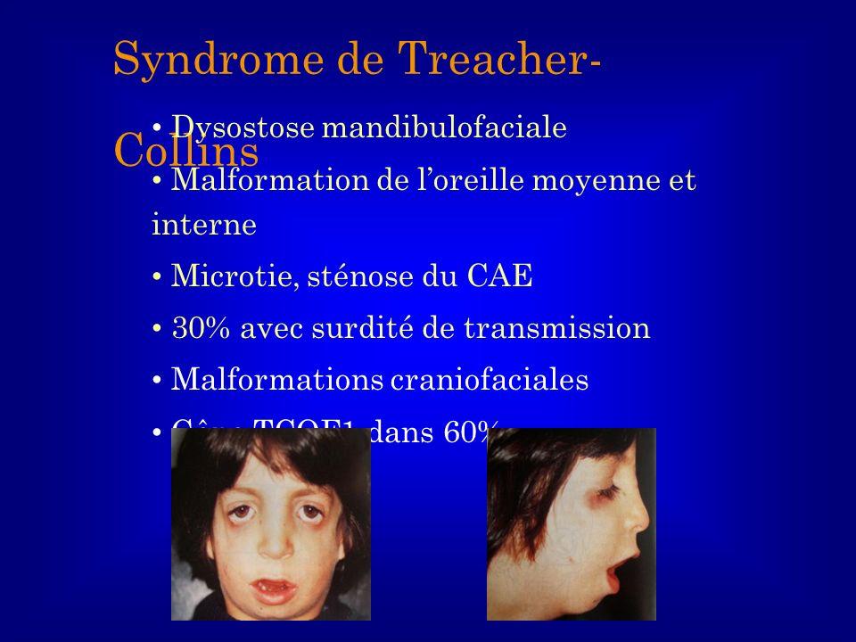 Syndrome de Treacher- Collins Dysostose mandibulofaciale Malformation de loreille moyenne et interne Microtie, sténose du CAE 30% avec surdité de tran