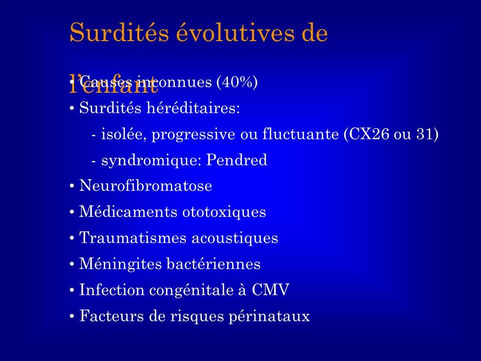 Surdités évolutives de lenfant Causes inconnues (40%) Surdités héréditaires: - isolée, progressive ou fluctuante (CX26 ou 31) - syndromique: Pendred N