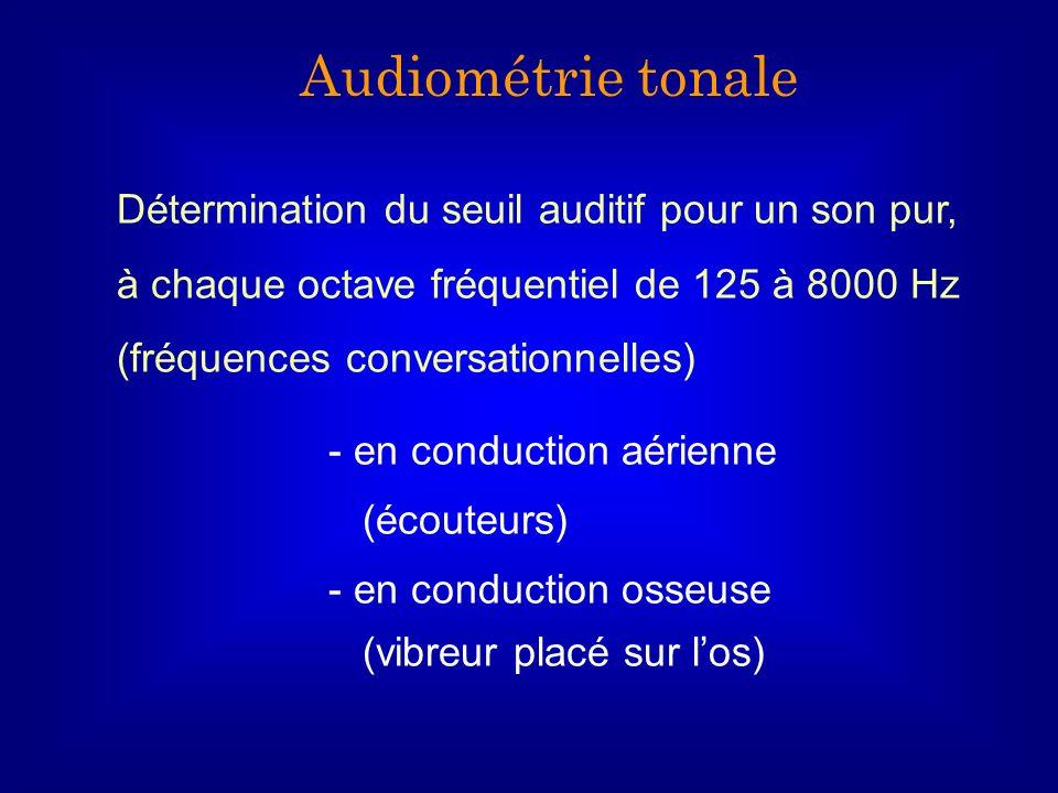 Détermination du seuil auditif pour un son pur, à chaque octave fréquentiel de 125 à 8000 Hz (fréquences conversationnelles) - en conduction aérienne