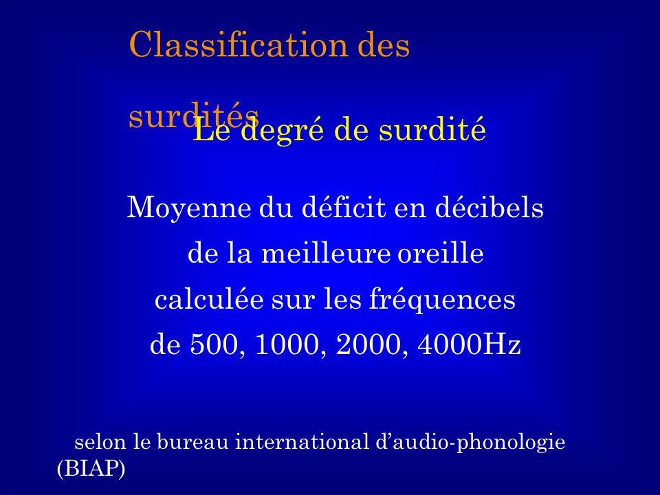 Classification des surdités Le degré de surdité Moyenne du déficit en décibels de la meilleure oreille calculée sur les fréquences de 500, 1000, 2000,