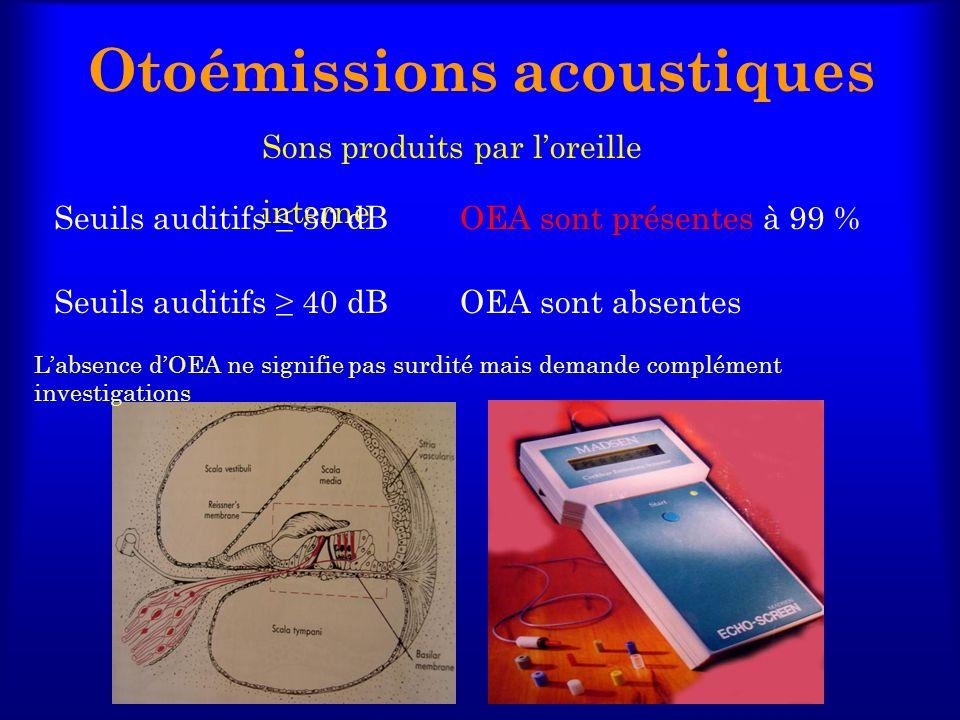 Otoémissions acoustiques Sons produits par loreille interne Seuils auditifs 30 dBOEA sont présentes à 99 % Seuils auditifs 40 dBOEA sont absentes Labs