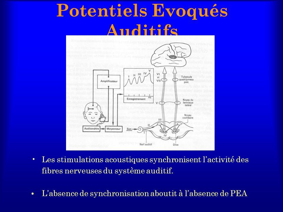 Potentiels Evoqués Auditifs Les stimulations acoustiques synchronisent lactivité des fibres nerveuses du système auditif. Labsence de synchronisation