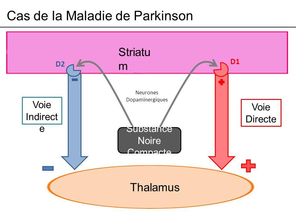 Cas de la Maladie de Parkinson Striatu m Thalamus Voie Indirect e Voie Directe Substance Noire Compacte D2 D1 Neurones Dopaminergiques