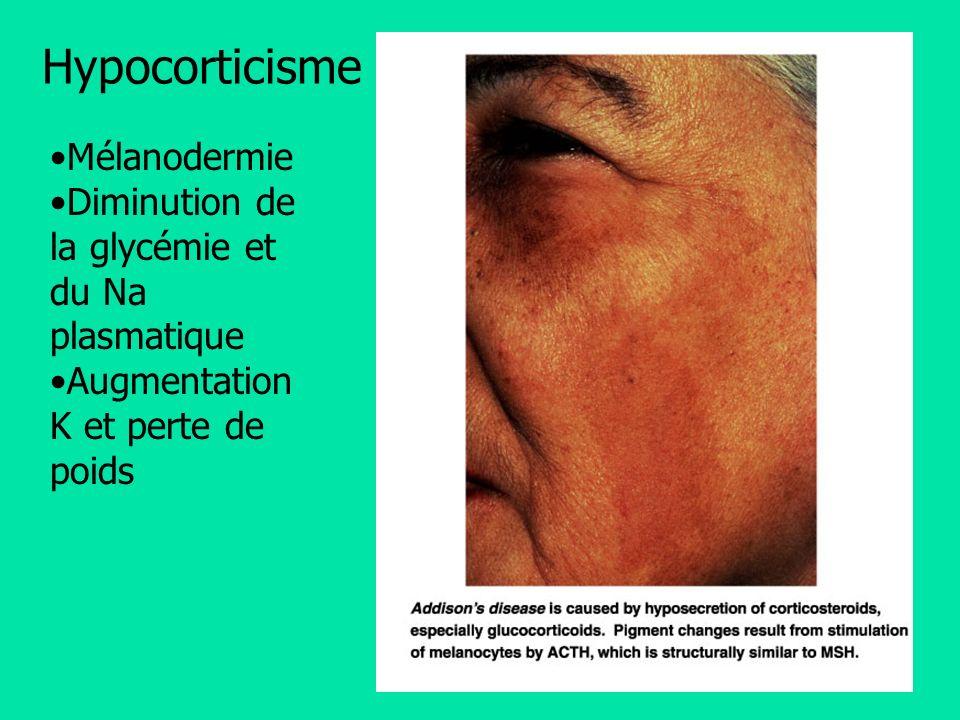Mélanodermie Diminution de la glycémie et du Na plasmatique Augmentation K et perte de poids Hypocorticisme
