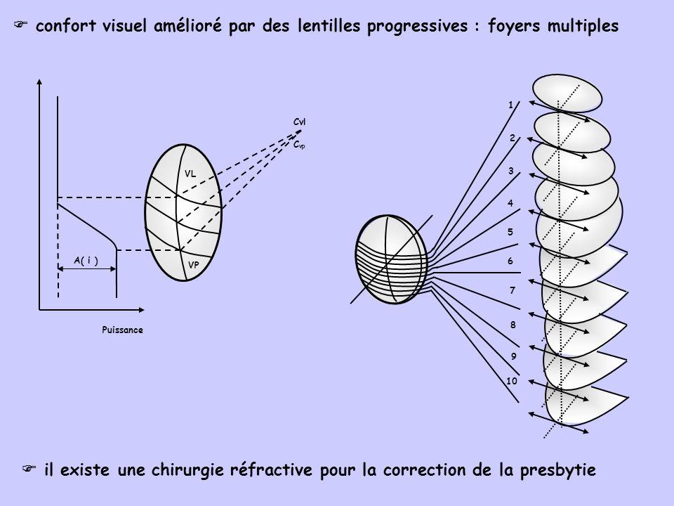 confort visuel amélioré par des lentilles progressives : foyers multiples il existe une chirurgie réfractive pour la correction de la presbytie 10 9 8