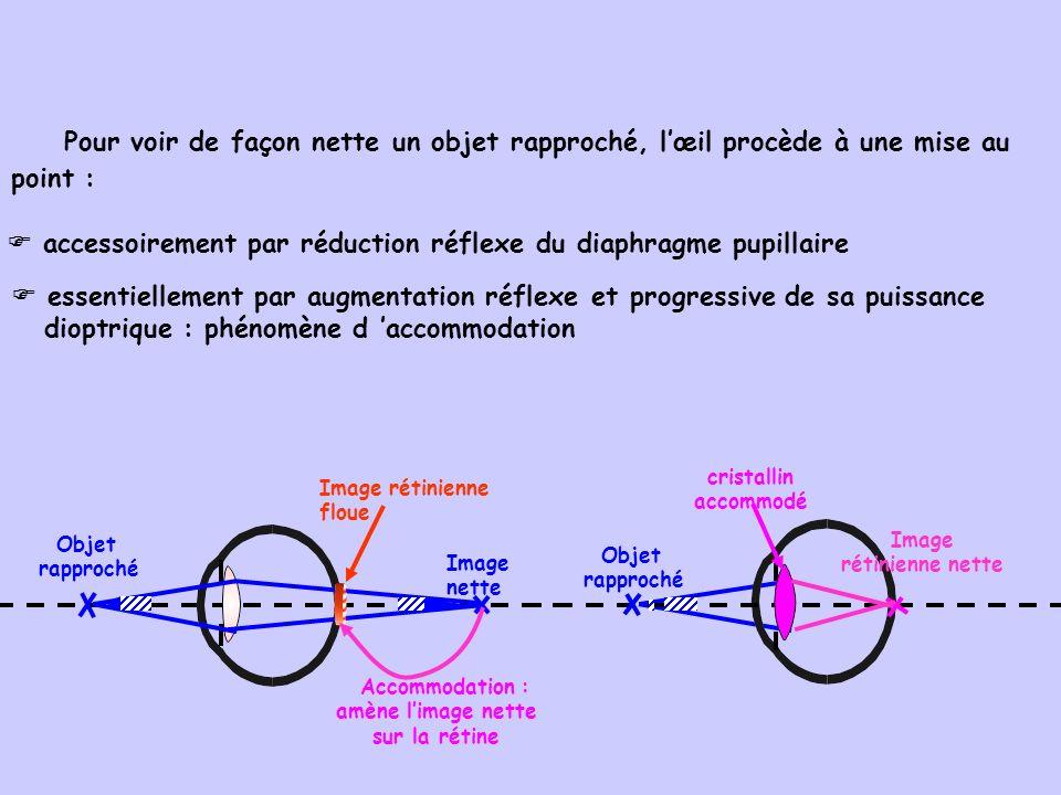 Pour voir de façon nette un objet rapproché, lœil procède à une mise au point : accessoirement par réduction réflexe du diaphragme pupillaire essentie
