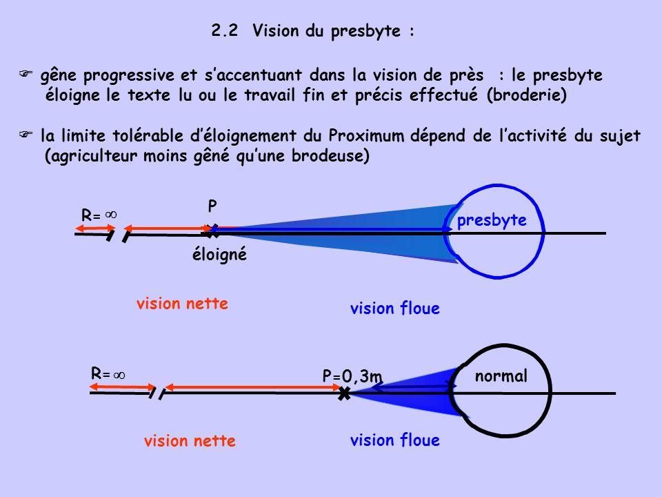2.3 Principe de la correction de la presbytie : port de lentilles convergentes pour la vision de près (lunettes, lentilles de contact) vision de près habituellement dirigée vers le bas : - foyer du bas, convergent, corrige la presbytie - foyer du haut : inexistant ou neutre chez lemmétrope corrige l amétropie chez un myope ou un hypermétrope