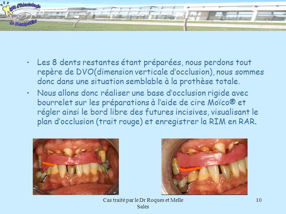 Cas traité par le Dr Roques et Melle Sales 10 Les 8 dents restantes étant préparées, nous perdons tout repère de DVO(dimension verticale docclusion),