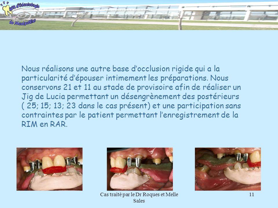 Cas traité par le Dr Roques et Melle Sales 11 Une fois les TFM réalisés, nous effectuons une chirurgie dassainissement sur le bloc inférieur et metton