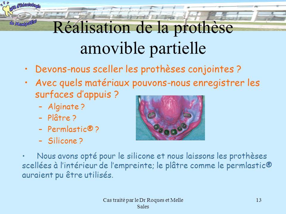 Cas traité par le Dr Roques et Melle Sales 13 Réalisation de la prothèse amovible partielle Devons-nous sceller les prothèses conjointes ? Avec quels