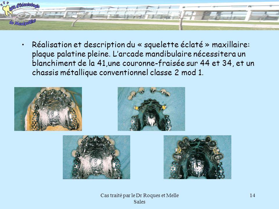 Cas traité par le Dr Roques et Melle Sales 14 Réalisation et description du « squelette éclaté » maxillaire: plaque palatine pleine. Larcade mandibula