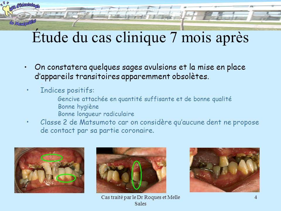 Cas traité par le Dr Roques et Melle Sales 4 Étude du cas clinique 7 mois après On constatera quelques sages avulsions et la mise en place dappareils