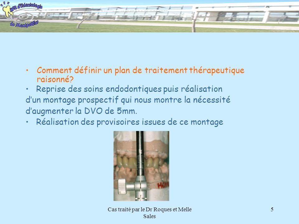 Cas traité par le Dr Roques et Melle Sales 5 Comment définir un plan de traitement thérapeutique raisonné? Reprise des soins endodontiques puis réalis