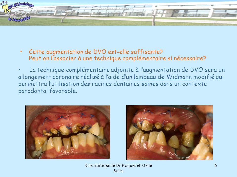 Cas traité par le Dr Roques et Melle Sales 6 Cette augmentation de DVO est-elle suffisante? Peut on lassocier à une technique complémentaire si nécess