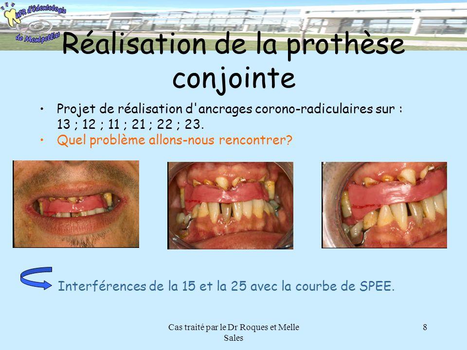 Cas traité par le Dr Roques et Melle Sales 8 Réalisation de la prothèse conjointe Projet de réalisation d'ancrages corono-radiculaires sur : 13 ; 12 ;